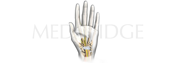 Best Tests for Carpal Tunnel Syndrome