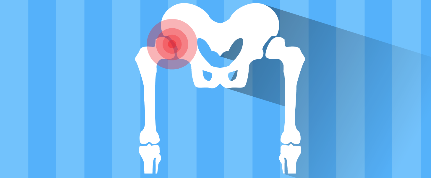 Total Hip Replacement: Exercises for an Earlier Return to Normal Gait