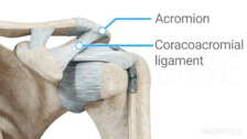 Femoroacetabular Impingement Syndrome Part 2: Complex Systems Approach